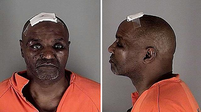 (Photo: Hennepin County jail) Al Flowers booking photos showing head and facial injuries.